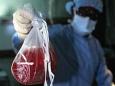 Кто создает спрос для черной трансплантологии?