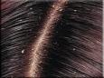 Здоровые волосы без перхоти
