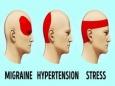 Способы избавиться от головной боли без таблеток