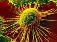 Раскрыт механизм возникновения рецидива рака