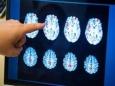 Отравлением мозга мочевиной и слабоумие