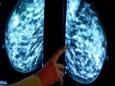 Новый способ лечения одной из самых агрессивных форм рака
