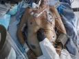 Техасская медсестра описывает «Яму», комнату, куда отправляют умирать пациентов