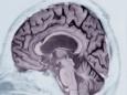 Как предсказать развитие у человека в будущем болезни Альцгеймера