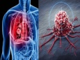 """Что такое """"Рак"""" и как избежать этой болезни"""